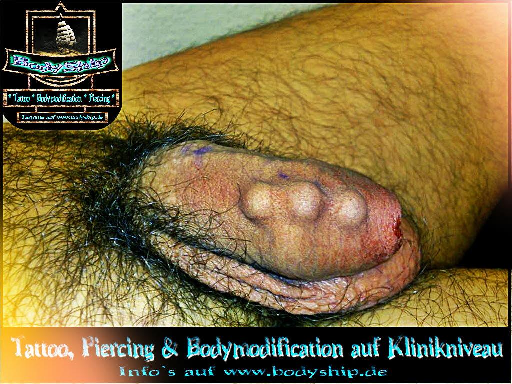 Implantat penis Penilný implantát